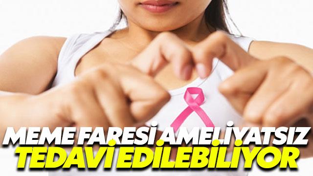 Fibroadenomlar ameliyatsız tedavi ediliyor