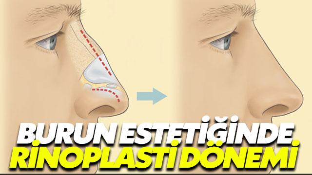 Burnunuzdan memnun değilseniz rinoplasti ameliyatını düşünmelisiniz