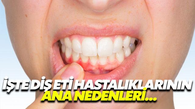 İşte diş eti hastalıklarının ana nedenleri