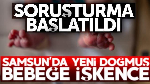 25 günlük bebeğe işkence yaptılar
