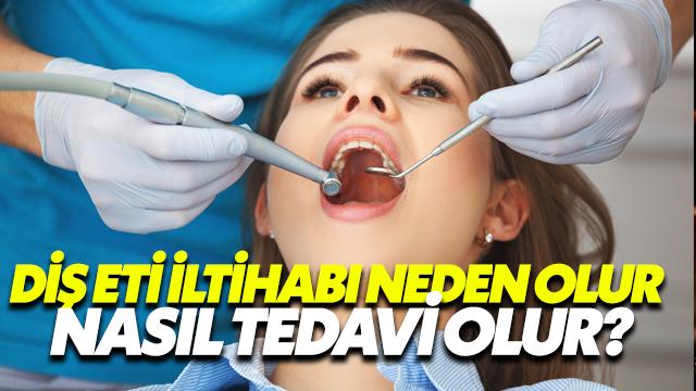 Diş Eti İltihabı Neden Olur, Nasıl Tedavi Edilir?