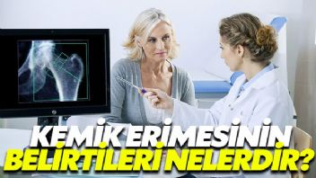 Osteoporozun belirtileri neler?