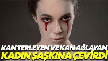 Kan terleyen ve kan ağlayan kadın şaşkına çevirdi