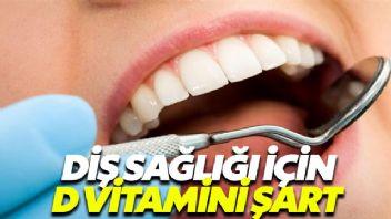 D vitamini diş sağlığı için şart