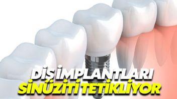 Diş implantları sinüziti tetikliyor