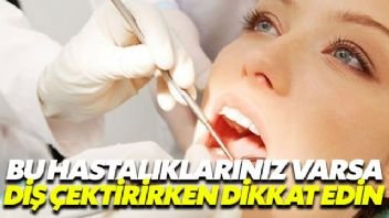 Bu hastalıkları olanlar diş çektirirken aman dikkat!