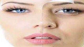 PRP yöntemi kendi kanınızla cildinizi yeniliyor