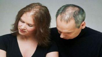 Saçlarınızın dökülmesini nasıl engelleyebilirsiniz