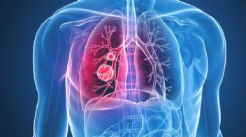 Kanser Hastalığının Önlenemeyen Artışı
