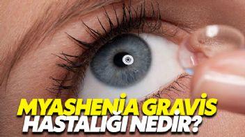 Myasthenia Gravis Hastalığı Nedir?