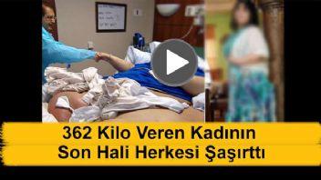 362 Kilo Veren Kadının Son Hali Bakın Ne Oldu
