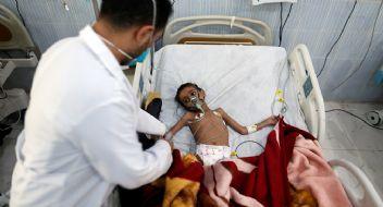 İnsanlık sınıfta kaldı; Yemen açlıkla pençeleşiyor